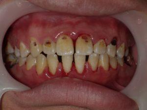 取れ た 歯石