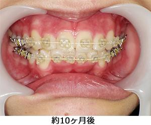 矯正歯科|診療内容|オカダ歯科クリニック|知立市、刈谷市 ...